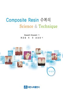 Composite Resin 수복의 Science & Technique